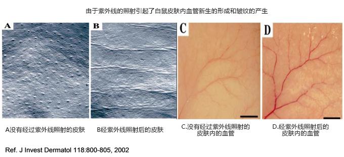 血管新生和皱纹的关联