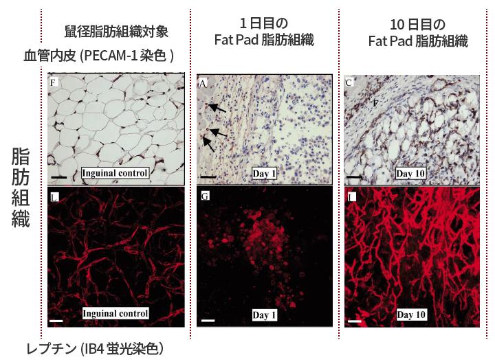 脂肪組織に対する血管新生とレプチンの関係