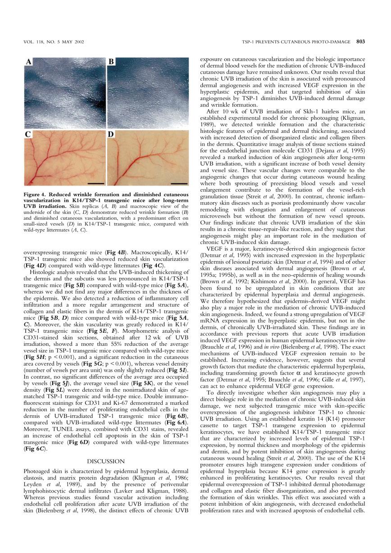 紫外線照射によるシワの発生と血管新生の形成 P4