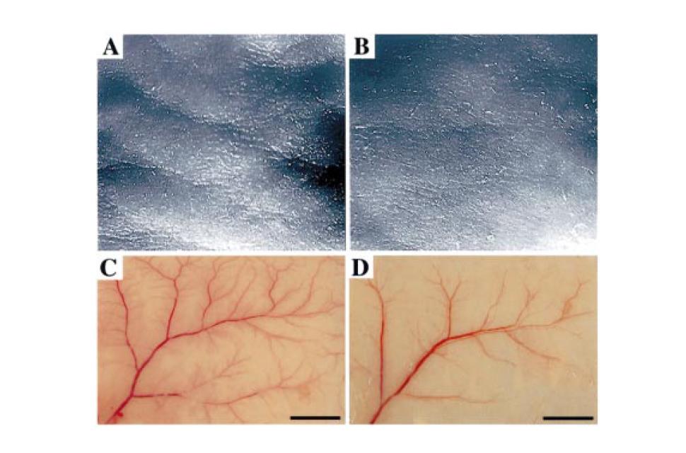 紫外線照射によるシワの発生と血管新生の形成