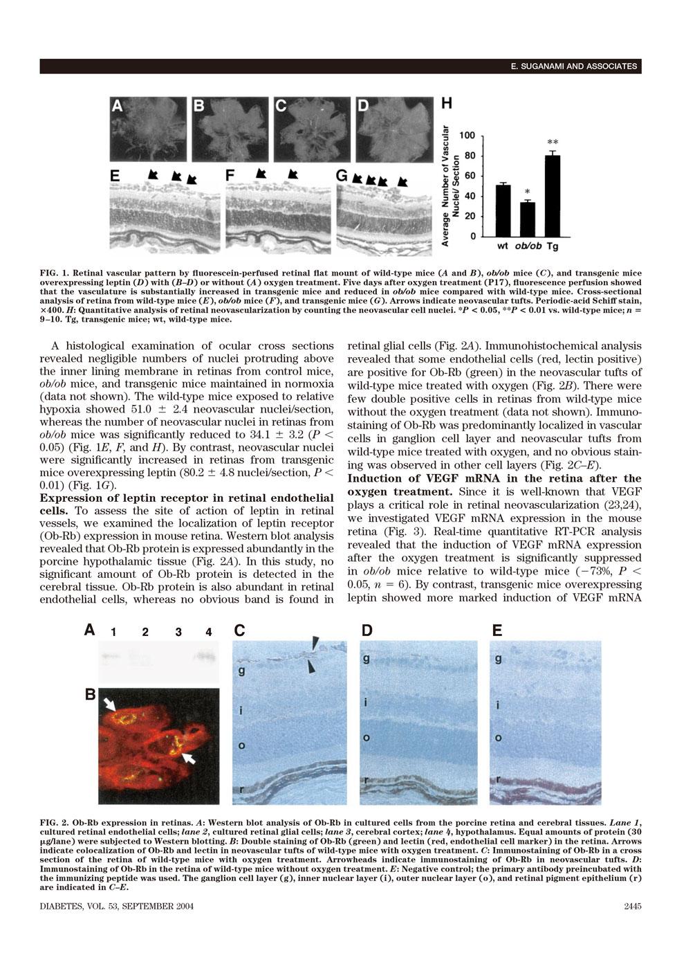 レプチンは虚血誘発性網膜血管新生を刺激する P3
