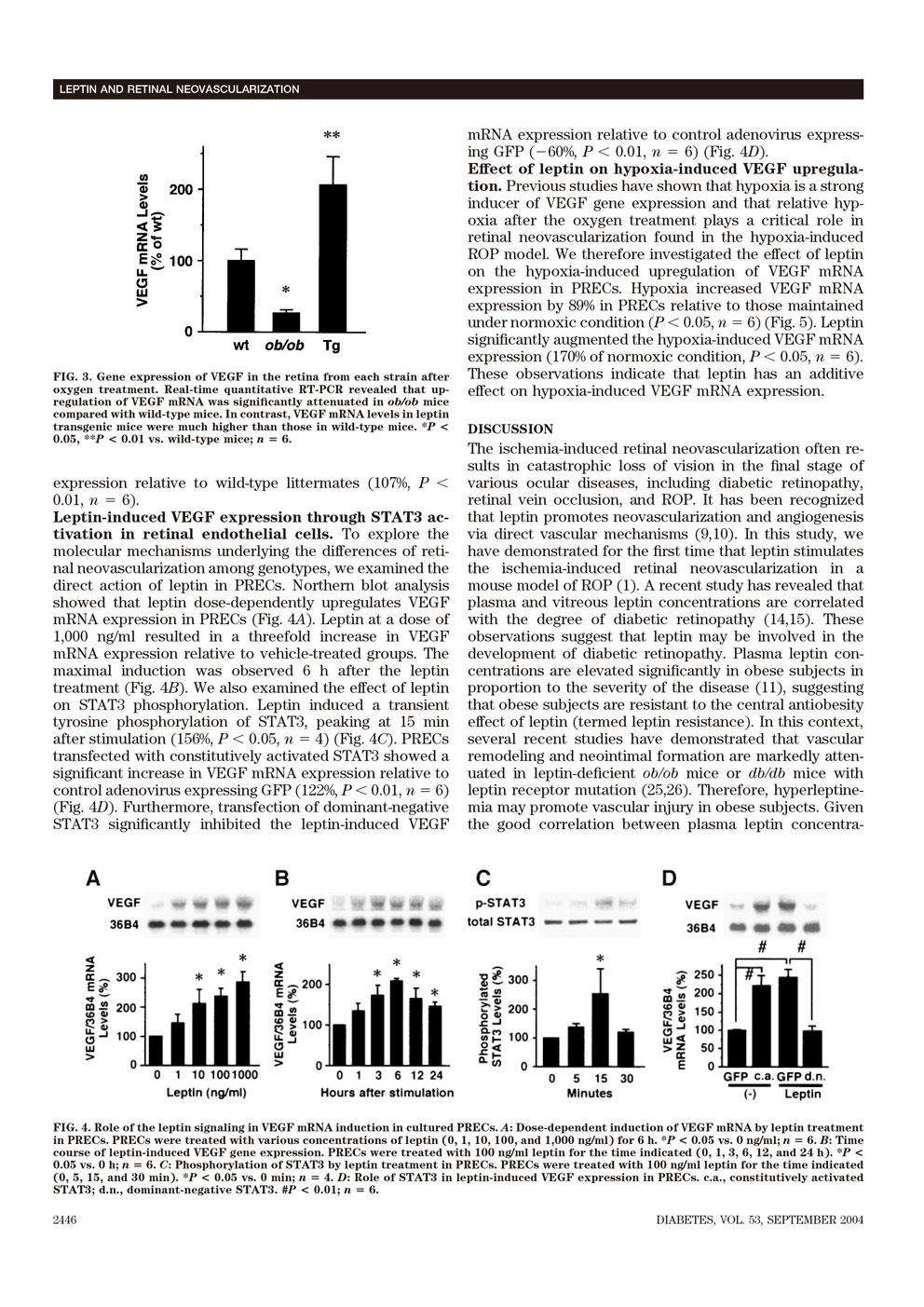 レプチンは虚血誘発性網膜血管新生を刺激する P4