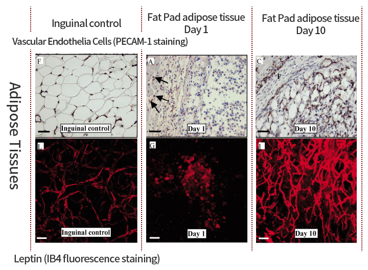 Relationship between Angiogenesis in Diabetic Retinopathy and obesity