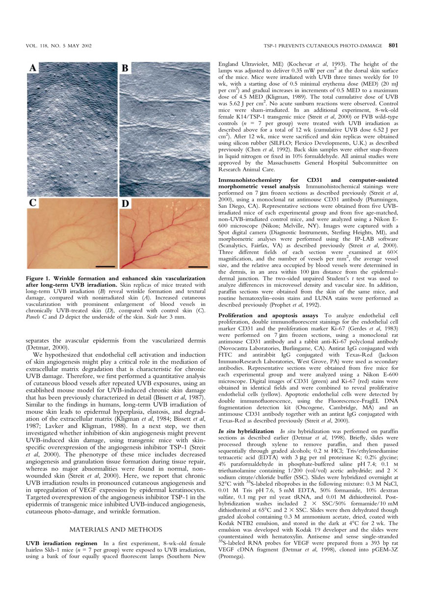 Targeted Overexpression of the Angiogenesis Inhibitor in the Epidermis Prevents Ultraviolet-B-Induced Angiogenesis and Cutaneous Photo-Damage P2